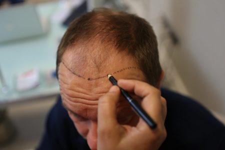 השתלת שיער לגברים בקדמת הראש