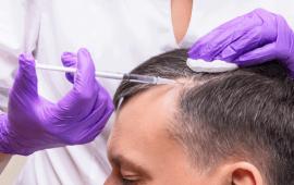ניתוח להשתלת שיער ללא צלקות