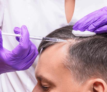 ניתוח השתלת שיער