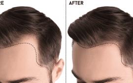קרחת בקדמת הראש - HairMaster
