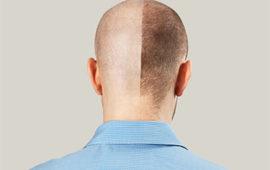 השתלת שיער ללא גילוח