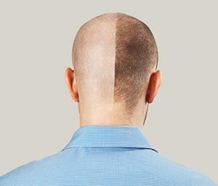 מהי הדמיית שיער