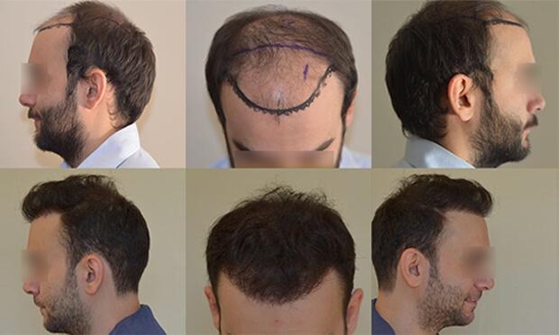 השתלת שיער לגברים - לפני ואחרי