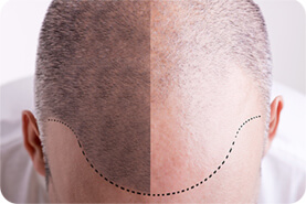 השתלות שיער לגברים