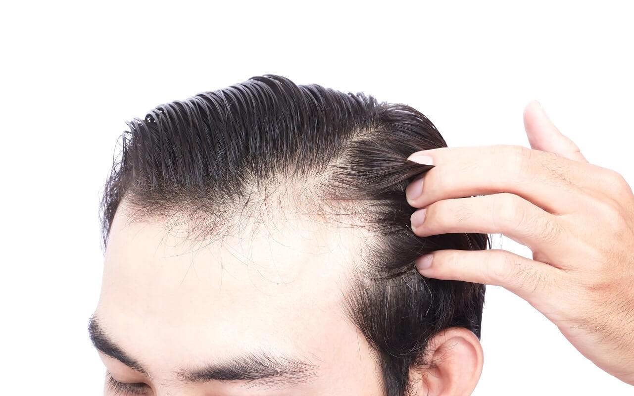 השתלת שיער במפרצים