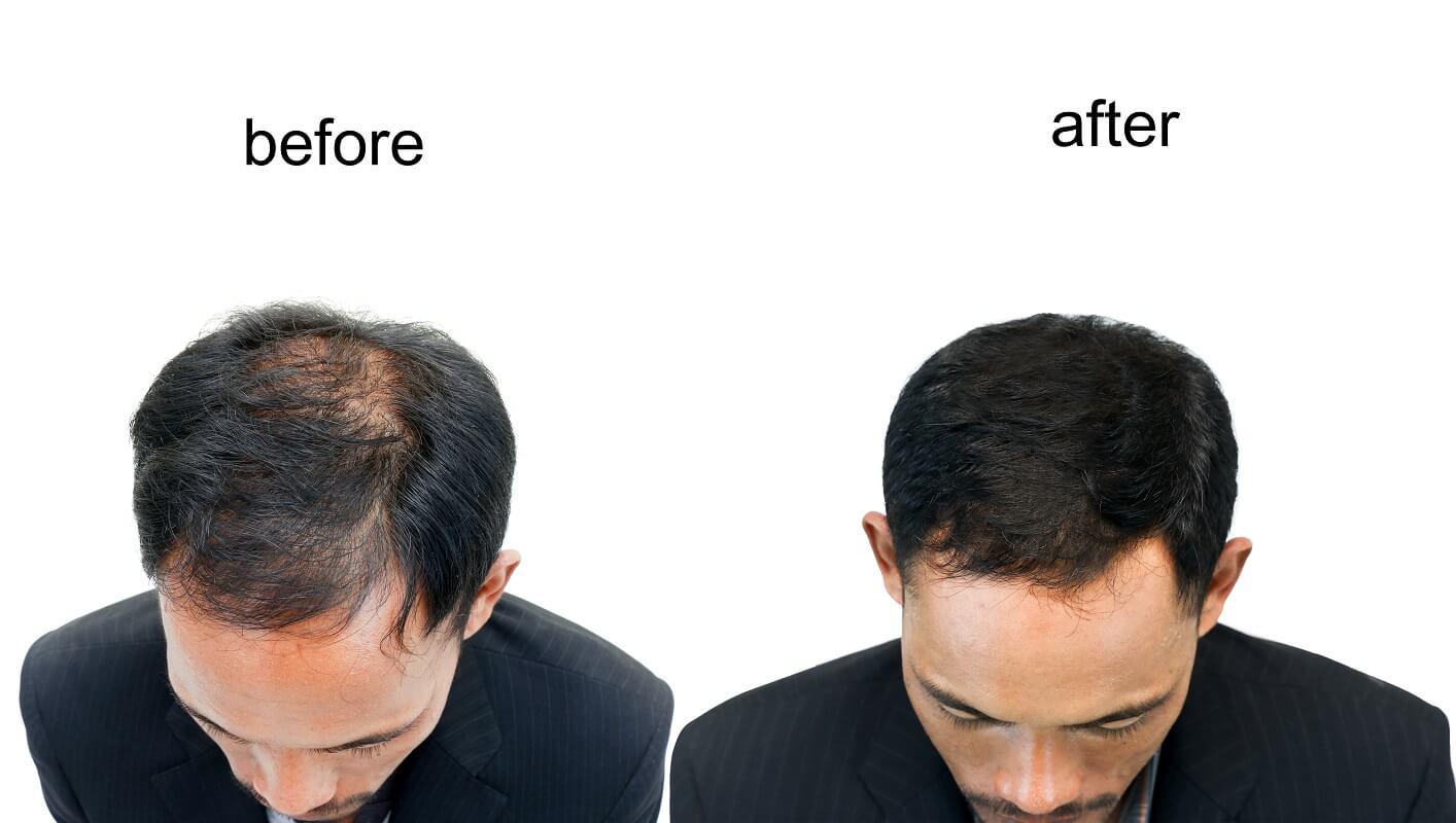 השתלת שיער dhi לגבר