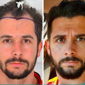 השתלות שיער ברמה הגבוהה ביותר בטורקיה